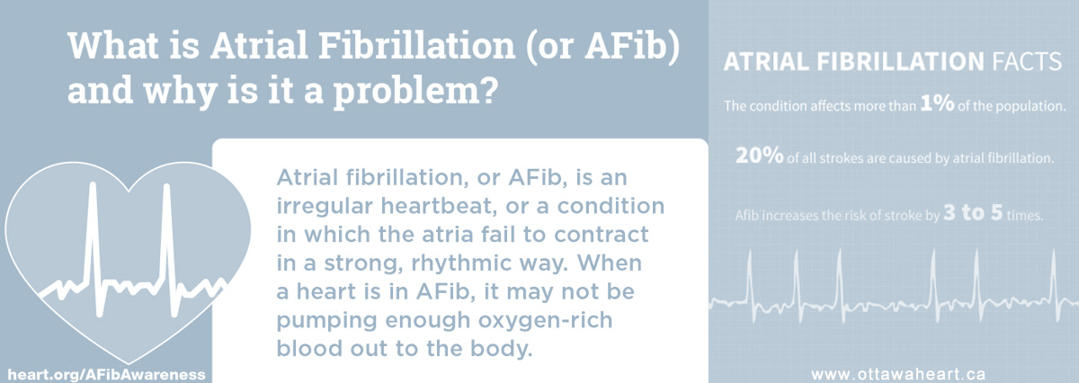 AFIB Care, Atrial Fibrillation Care | Live-In Home AFIB Atrial Fibrillation Care